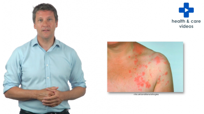 The Shingles Vaccination Thumbnail