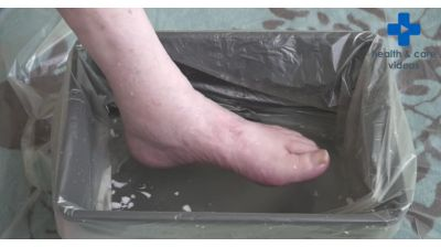 Diabetic Foot Complications High Risk Thumbnail