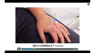 Cannula - Finished Thumbnail