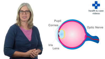 What is a cataract? Thumbnail