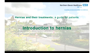 Hernias and their Treatments - A guide for patients Thumbnail