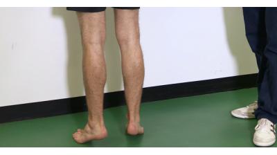 Foot and Ankle; Calf raises Thumbnail