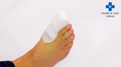 Looking after your toe dressing after nail surgery Thumbnail