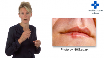 What are cold sores? Thumbnail