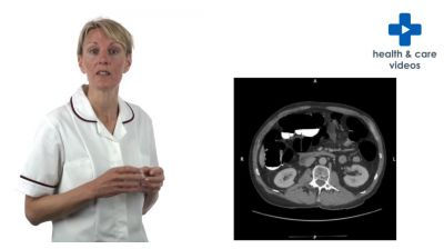 What is a CT scan? Thumbnail
