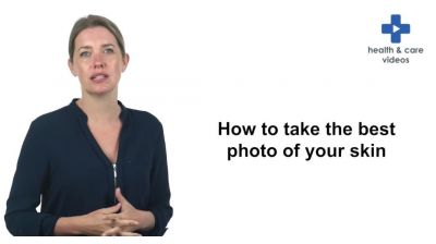 How to take the best photo of your skin Thumbnail