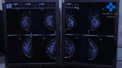 Having a Mammogram Thumbnail
