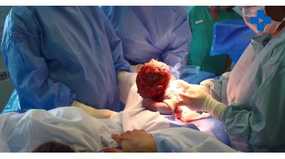 Your Caesarean Birth Thumbnail