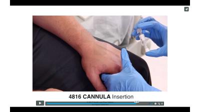 Cannula - Insertion Thumbnail