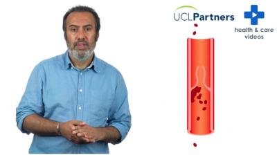 What is Anticoagulation? Thumbnail