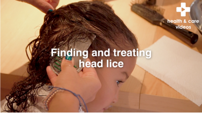 Finding and treating Head Lice Thumbnail