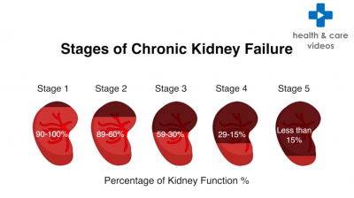 What is Chronic Kidney Disease (CKD)? Thumbnail