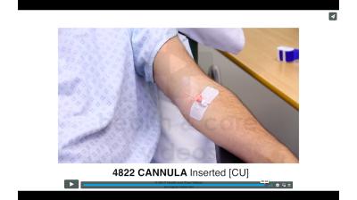 Cannula - Inserted Thumbnail