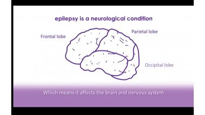 What is epilepsy? | Epilepsy Society Thumbnail