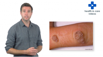 An introduction to warts and verrucas Thumbnail