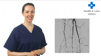 Having a Lower Limb Angiogram and Angioplasty Thumbnail