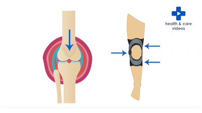 What is a knee brace? Thumbnail