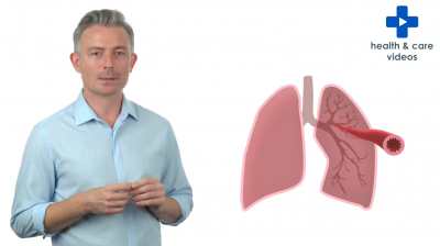 What is asthma? Thumbnail