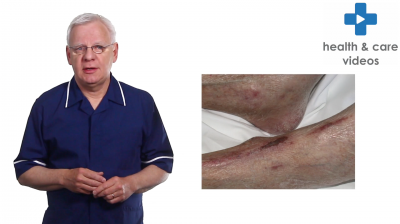 How to complete a skin assessment Thumbnail