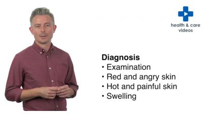 What is cellulitis? Thumbnail