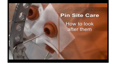 Pin Site Care: How to look after them Thumbnail