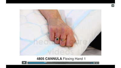 Cannula - Flexing Hand Thumbnail