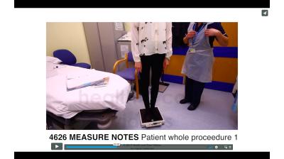 Measure Notes - Patient whole procedure Thumbnail