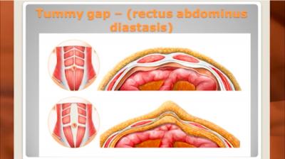 The tummy Thumbnail