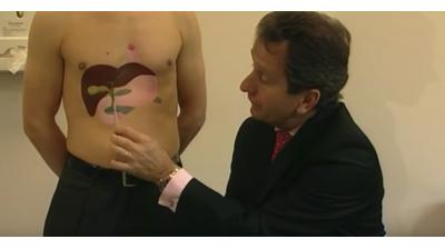 Gallstones - A guide for Patients Part 1 Thumbnail